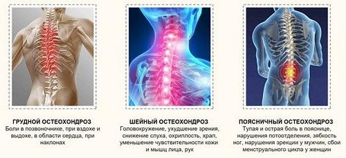 golovnaya_bol_pri_osteohondroze_sheynogo_otdela_simptomy_25785_large_500.jpg