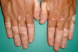 vitiligo46.jpg