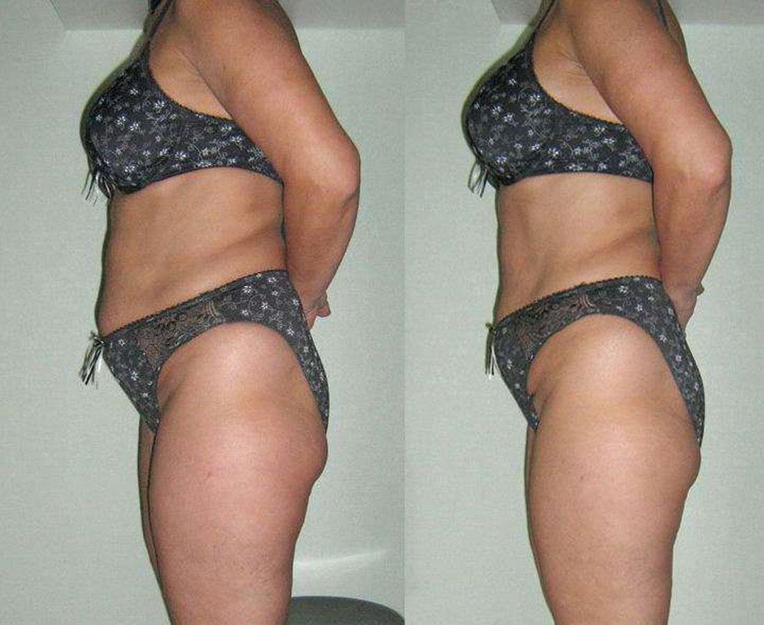 Сбросить вес при помощи массажа