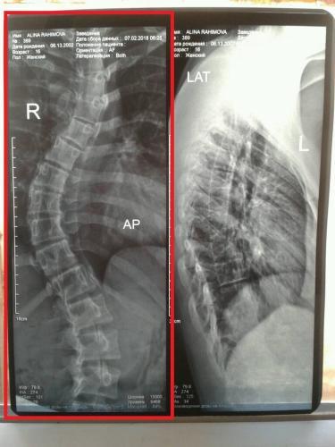 Рентген 5 — копия (3).jpg